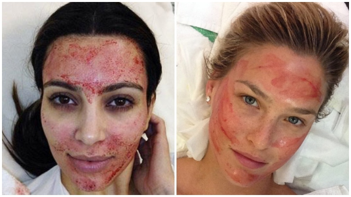 dr lara devgan microneedling kim kardashian - bar rafaeli - best female plastic surgeons nyc